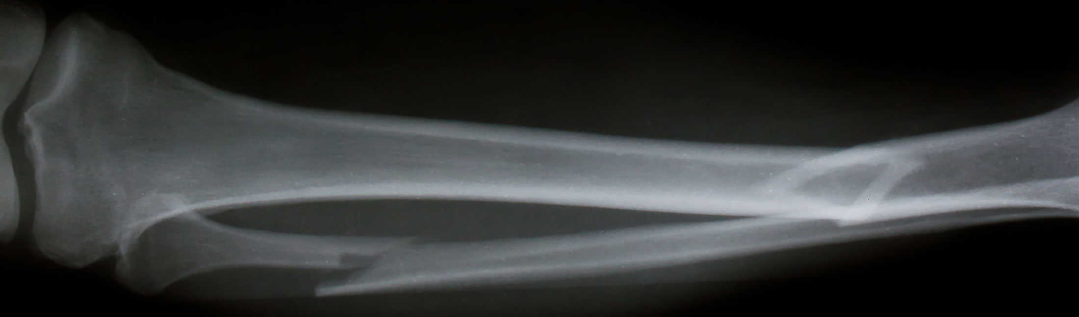 X-ray-broken-legs